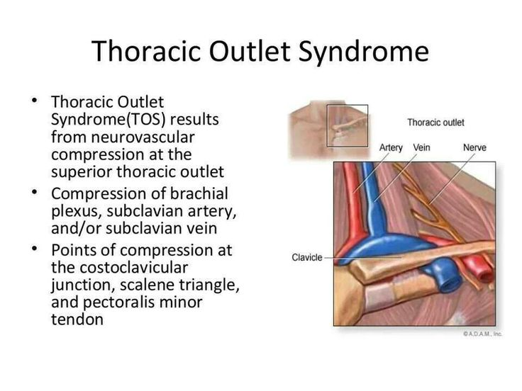 thoracic outlet syndrome - photo #26