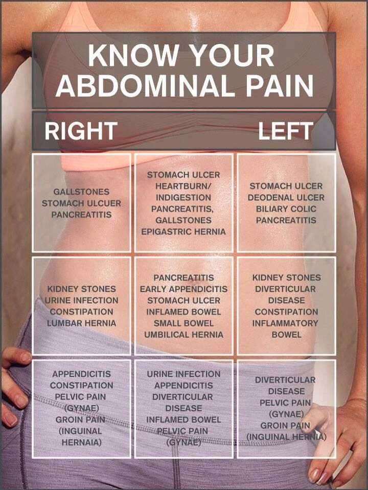 Know Your Abdominal Pain Health Pinterest Pain D