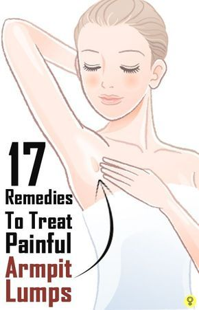 The 25 Best Swollen Lymph Nodes Armpit Ideas On Pinterest