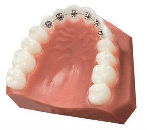 De modernste oplossing voor rechte tanden is een compleet onzichtbare -linguale- beugel.  De slotjes en draad zitten aan de binnenkant van ...