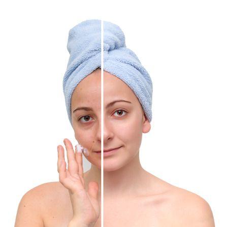 Top 683 ideas about Meladerm Skin Lightening Cream For ...