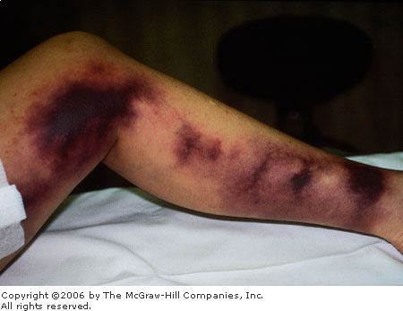 51 Best Images About Vasculitis On Pinterest Charts
