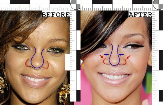 Chatter Busy: Rihanna Nose Job