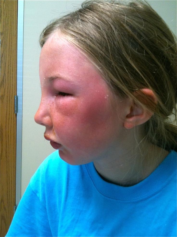 ashleybensonfitness: SUN vs SUNSCREEN -the sun is not the bad guy: Sunscreen
