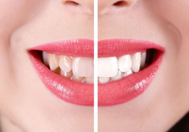 A high percentage of people nowadays would like their teeth to be whiter, but what's the best way to do it?  With so many products on the market claiming to brighten your smile, here a simple guide to explain what is what in the world of whiter teeth!     ·         Blue Laser Whitening Laser whitening treatment is the latest #laserteethwhiteningcosmeticdentistry