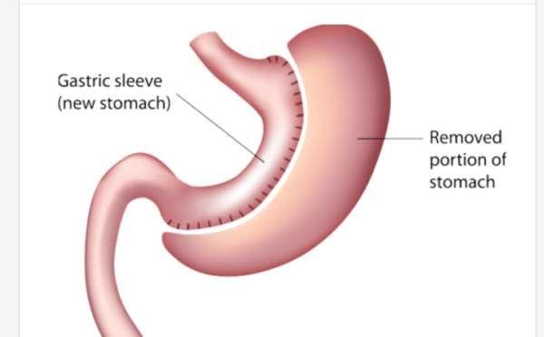 طرق امنه لتخلص من السمنه مع عملية قص المعده How To Remove Gastric Sleeve Outdoor Decor