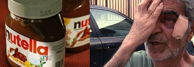 CALIFORNIA Da non crederci: un giovane ha picchiato un'anziano per un barattolo di Nutella. Secondo una prima ricostruzioneun giovane, Derrick Gharabighi ha