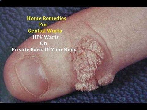 Genital warts on hands