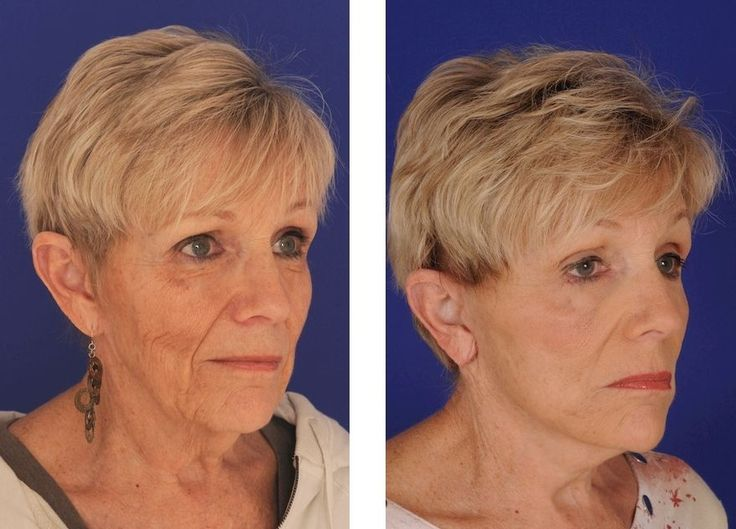 How You Can Acquire A Biological Facelift Utilizing Undemanding Facial Exercises