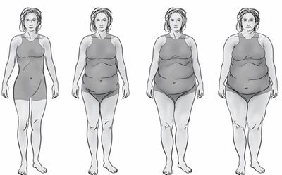 Thyroid Body Type - Stages include:    Fatigue - generalized weight gain - cold intolerance (cold feet and/or hands) - brittle nails and vertical ridges (could be thick) - hair stiff and dry - puffiness around eyes - outer eyebrows thinning or absent - poor short-term memory and focus - depression - dry skin - hair loss - craving bread, pasta, sweets - high cholesterol - loss of libido.