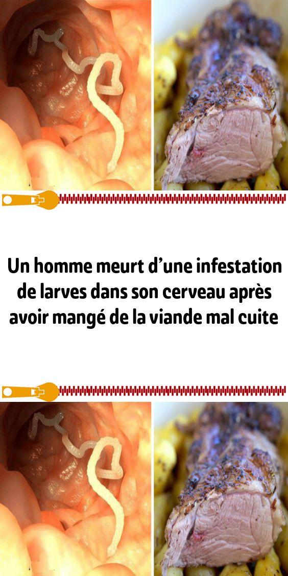 Un homme meurt d'une infestation de larves dans son cerveau après avoir mangé de la viande mal cuite