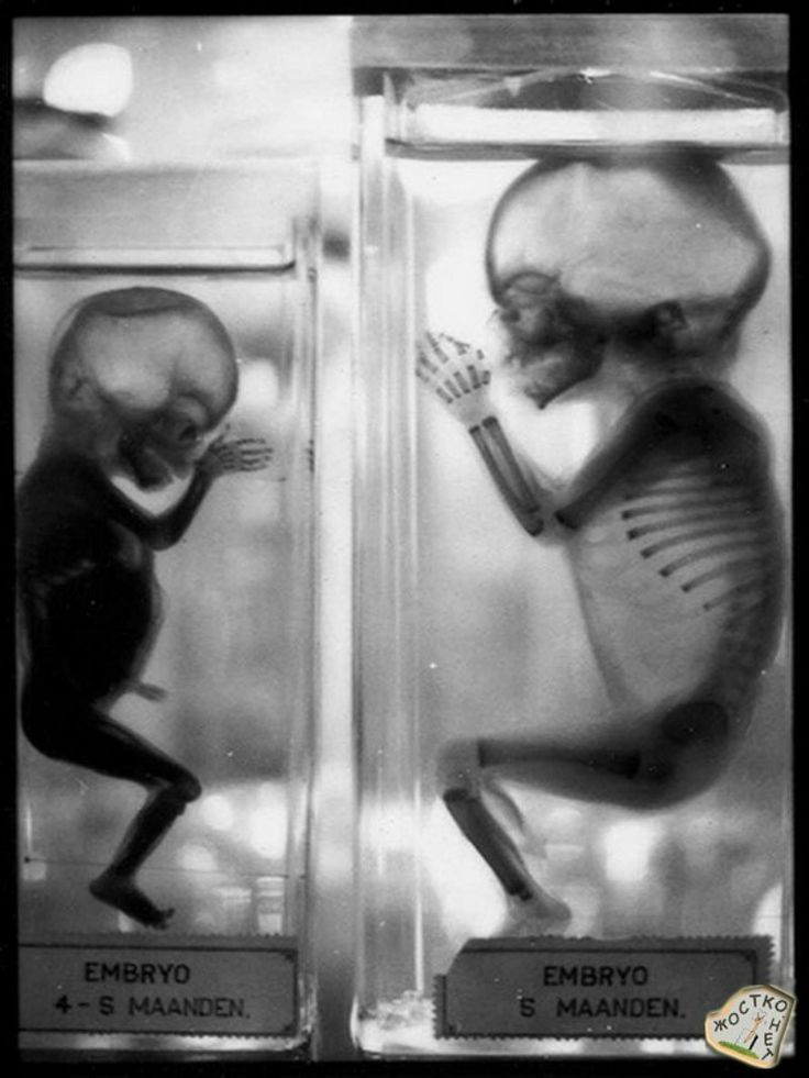 The Creepatorium