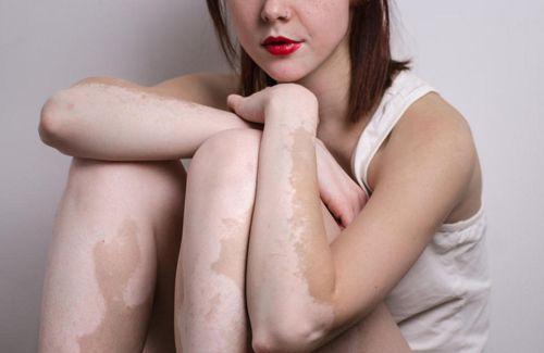 Người bị bạch biến dễ mắc ung thư da