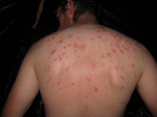 Bed Bug Bites – Bed Bug Signs URL: http://spiderbites.net/bed-bug-bites/