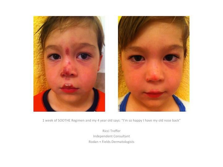 Rodan + Fields SOOTHE before and after - rosacea, eczema, or psoriasis. go to my website for more information! https://marlieholifield.myrandf.com/