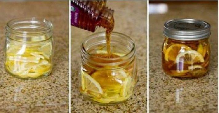 Este xarope com apenas 3 ingredientes vai eliminar sua tosse logo no primeiro dia