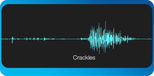 crackles-pulmonary edema