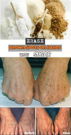 Erase brown spots on hands with 1/2 teaspoon sugar and juice of 1/2 lemon. Apply to stain. Let sit 10 minutes. Rinse.