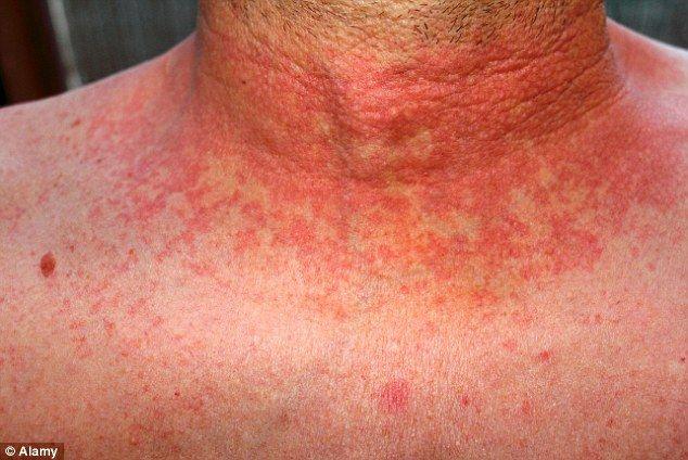 Scarlet Fever rash adult