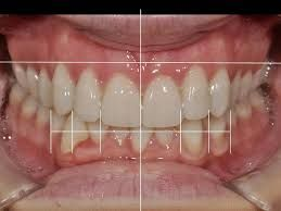 Smile Makeover: Considerations and Components of Smile Design. ... A smile makeover is the process of improving the appearance of the smile through one or more cosmetic dentistry procedures, such as dental veneers, composite bonding, tooth implants and teeth whitening.