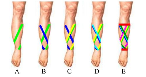 Combination Taping for Shin Splints. Alternate the Anterior/Medial and the Lateral taping procedures for 3 or 4 repetitions to obtaind additional support with a baskeweave structure.