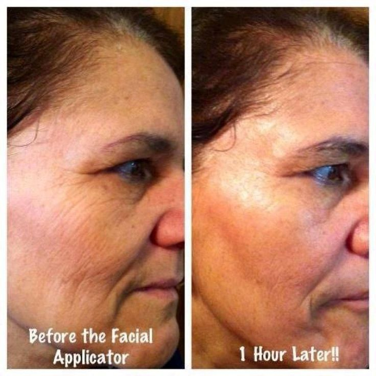 One facial applicator.  45 minutes later.