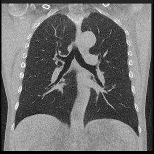 0.08 mSv chest clinical image