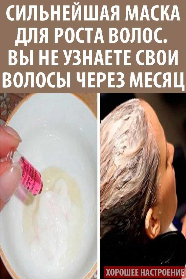 varicoză cu încărcătură)