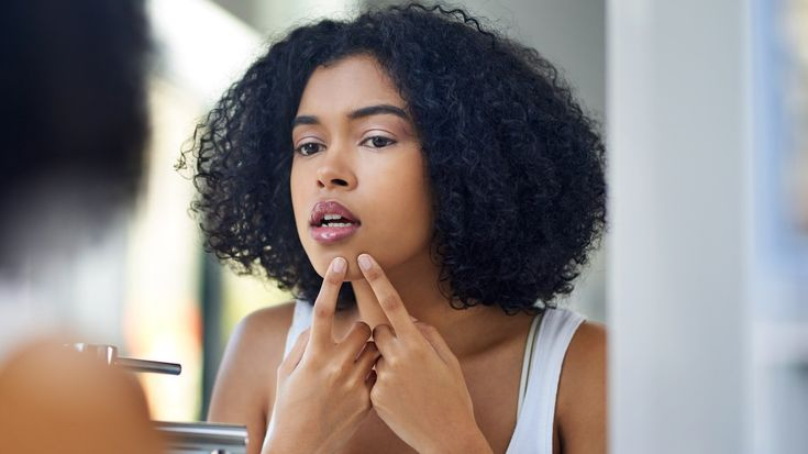 How to Pop a Pimple the Right Way, If You Absolutely Must