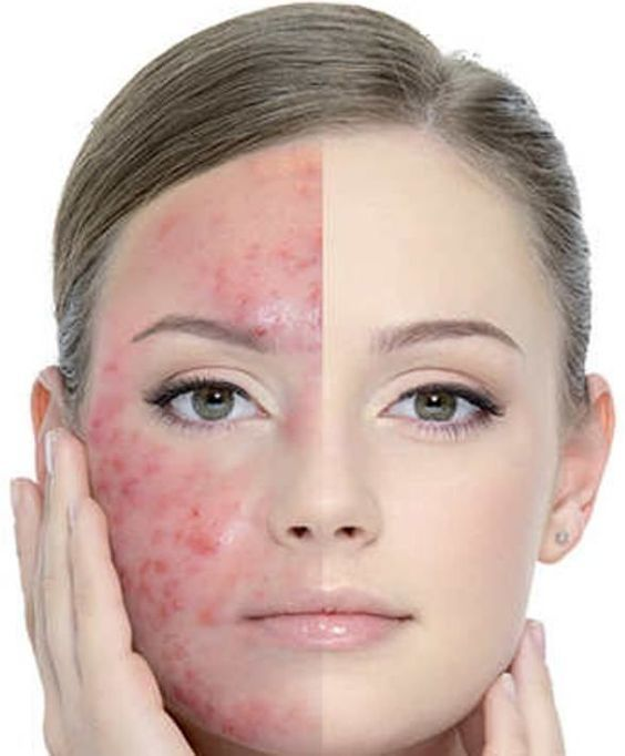 How to get rid of acne marks fast? Get rid of acne marks naturally. Remedies for acne marks. Treat acne marks overnight. How to cure acne marks at home? #natural #sensitiveskincare #beauty #beautifulskin #aqiskincare #skincare #acne #lessacne