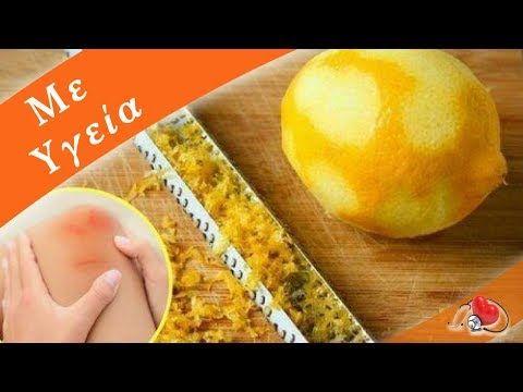 Λεμονόφλουδα για τον πόνο στις αρθρώσεις - YouTube