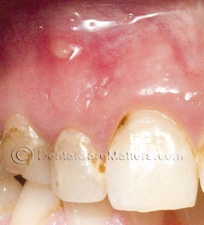 A root canal symptom: An abscess above a front tooth