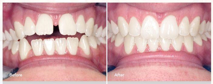 Invisalign - A clear way to a healthier, straighter smile! #Brampton #Dentist #OralHealth #Invisalign Invisalign, Brampton, Dentists, Orthodontist in Brampton, Family Dentist,