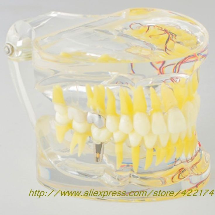 (78.00$)  Watch more here - http://ailu5.worlditems.win/all/product.php?id=32310861924 - Dental Adult pathological model With tooth nerve With inlay restoration