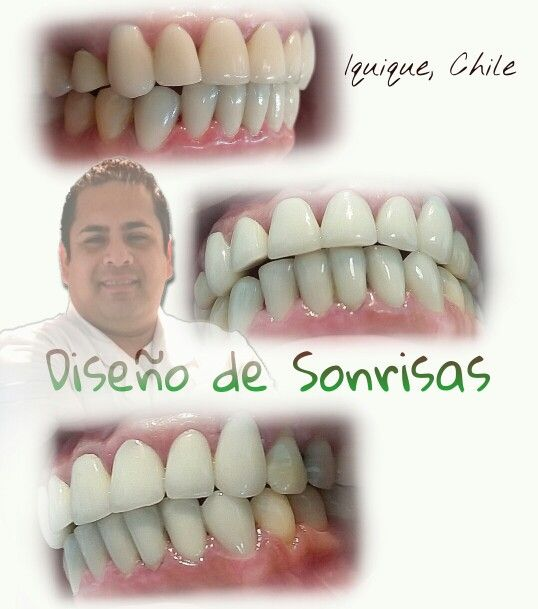 Diseño de Sonrisas
