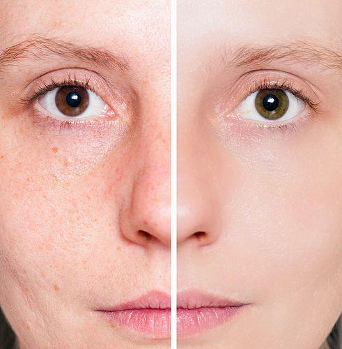 Solução natural para tirar manchas da pele