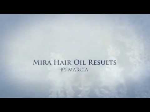 Mira Hair Oil Results. Need to try