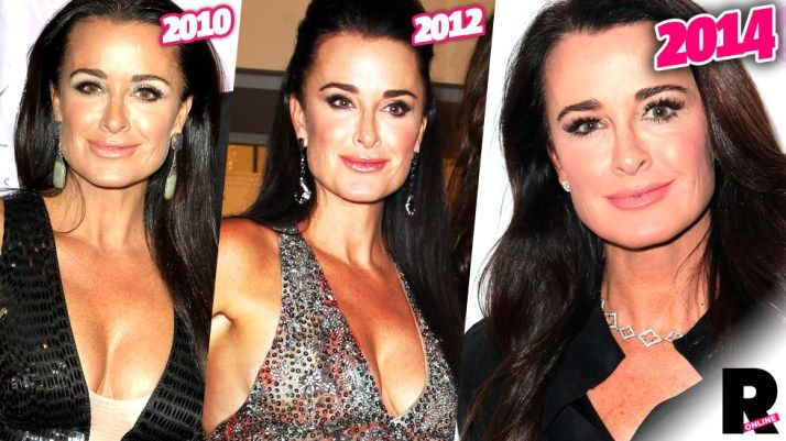 "In Beverly Hills, Calif., everyone accepts plastic! The Real Housewives of Beverly Hills star Kyle Richards was spotted recently looking a little too ""nip-tucked"" and a top plastic surgeon tells Ra..."