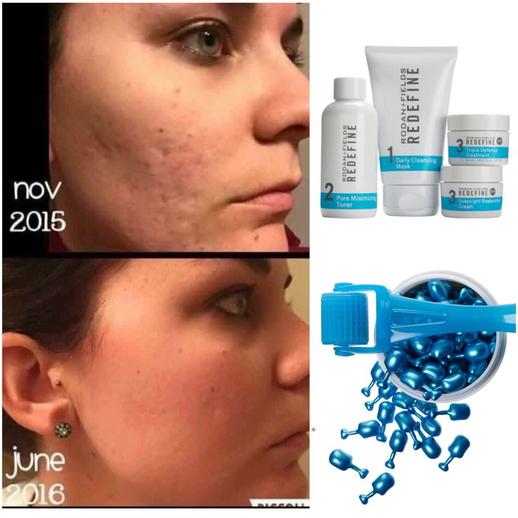 Scarring can be corrected.... Rodan and Fields, Night renewing serum, Redefine!  The triple threat against scars! Contact me to learn more  #skincare #beauty #rodanandfields #teamdreamdesigners #teamserendipity #teamgive #Australia #acne #rodan+fields