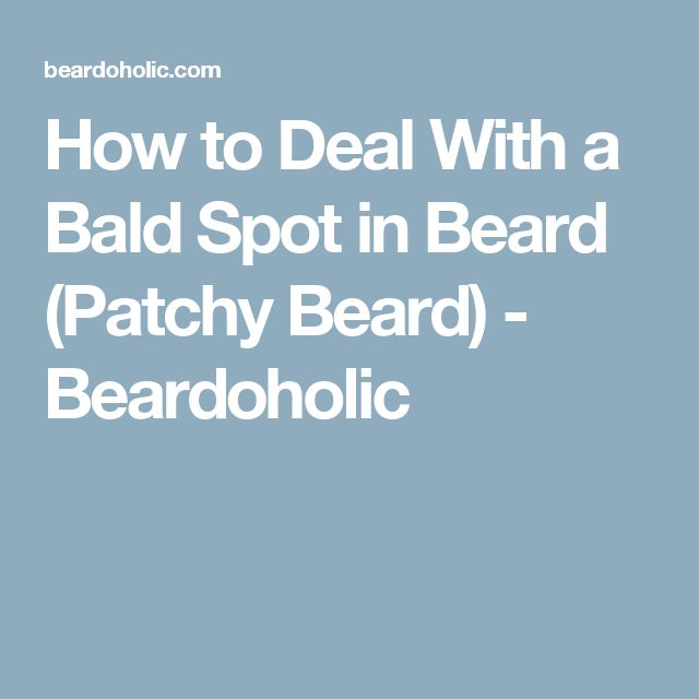 How to Deal With a Bald Spot in Beard (Patchy Beard) - Beardoholic