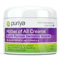 Puriya Cream For Eczema, Psoriasis, Rosacea, Dermatitis, Shingles and Rashes.