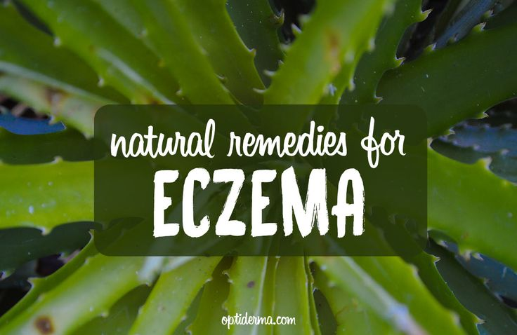 What are the foods to avoid if you have eczema? Which supplements may help? What about herbal or homeopathic remedies for eczema? Here are a few tips.