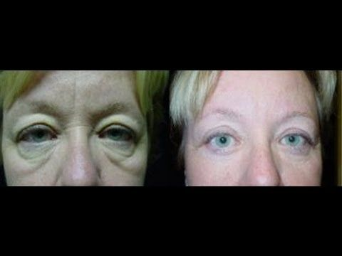 Facial Yoga Exercises For Reducing Dark Circles, Eye Wrinkles, And Puffy Eye Bags - I like this video in the way that it described how to work the points around the eyes. The 1st video I posted includes the 6 points - this only includes 2. I recommend all