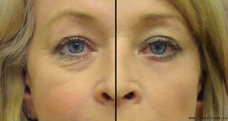 Aproape toate femeile care au trecut de 40 de ani devin iritate de micile linii fine si de ridurile care apar in zona ochilor. Astazi vreau sa va ofer o solutie remarcabila cu ulei de argan care va face minuni … Continuă citirea →