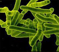 Mycobacterium tuberculosis, bacteria causante de la tuberculosis