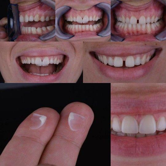 Odontologia Estetica. Caso clinico para cerrar diastema con carillas de zirconio .