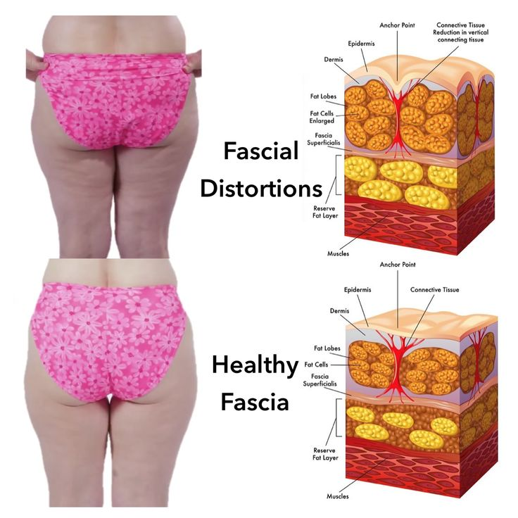 205 Best All About Fascia What Is Fascia Images On Pinterest