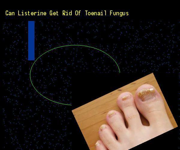 Kann Listerin Zehennagelpilz loswerden Nail Fungus Remedy. Sie haben nichts t Nagelpflege