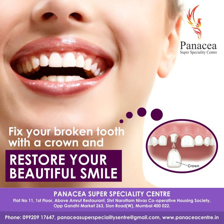 Fix your broken tooth with a crown and restore your
