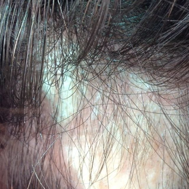A Texas woman is suing hairstylist Chaz Dean, alleging that one of his WEN products causes women to lose clumps of hair.